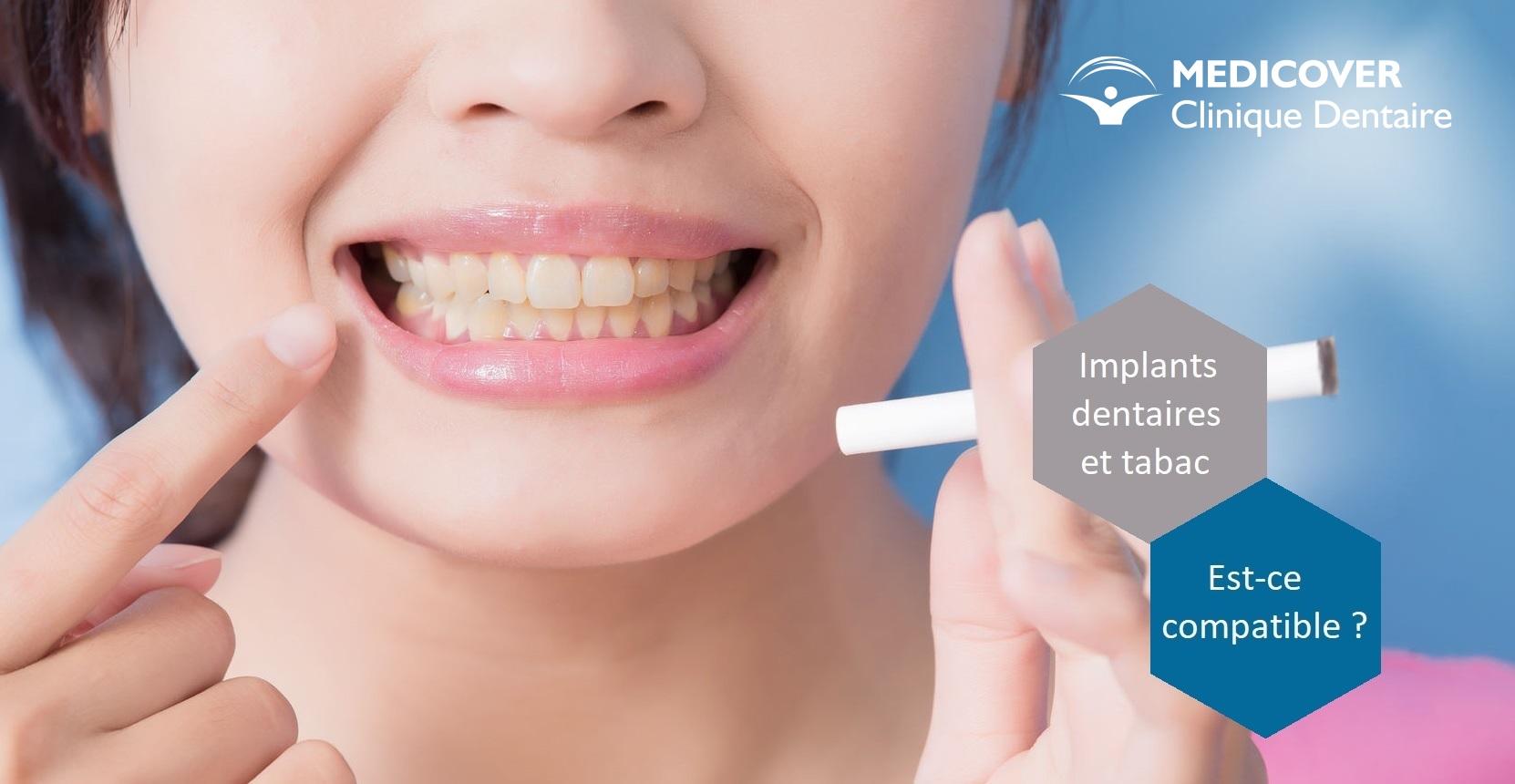 Implant dentaire : quelles sont ses différentes formes ?
